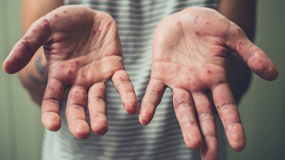 Как распознать корь и чем она опасна
