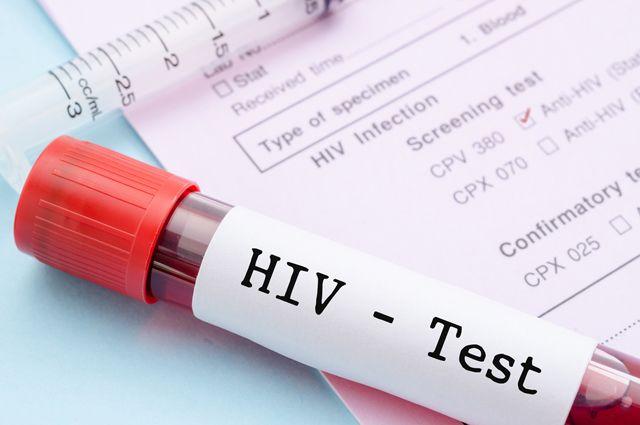 Россиян будут проверять на ВИЧ прямо на рабочем месте