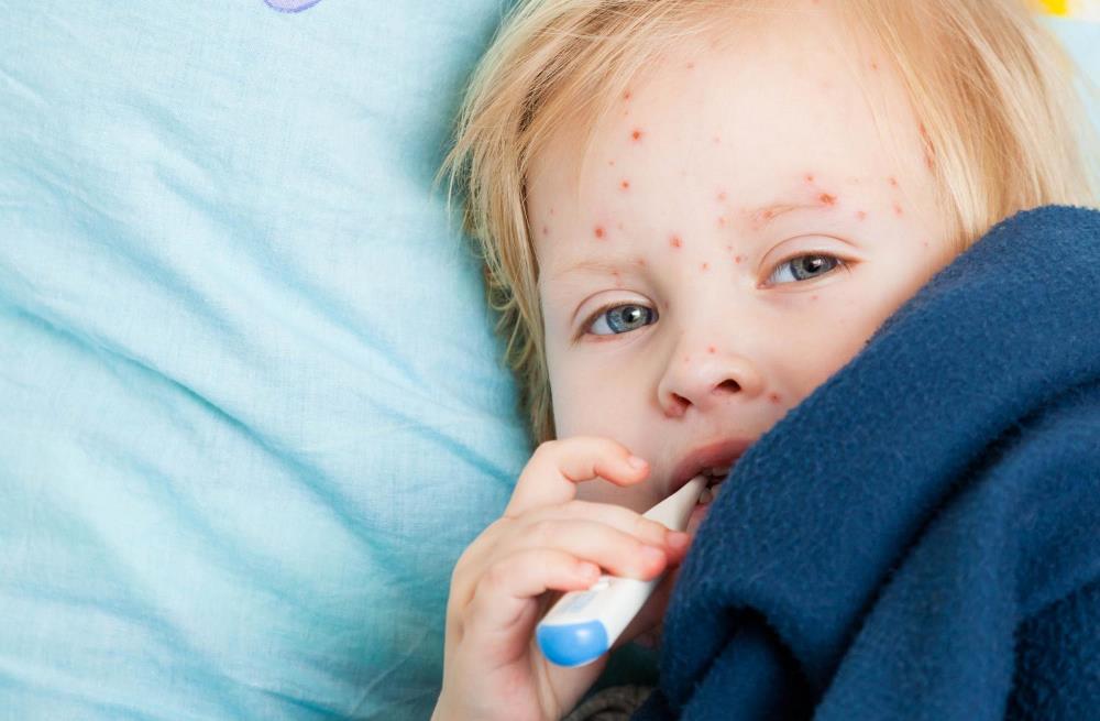 Продолжает расти число заболевших корью в Крыму