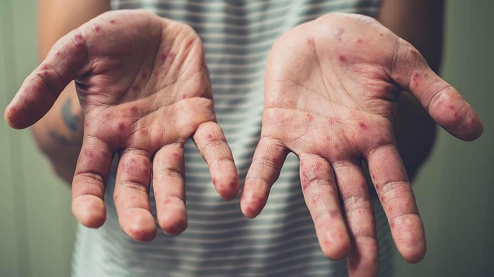 Шестнадцатый случай заболевания корью зафиксирован в Севастополе