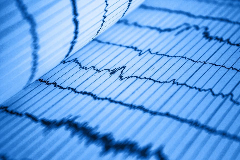 Найден новый способ лечения сердца после инфаркта
