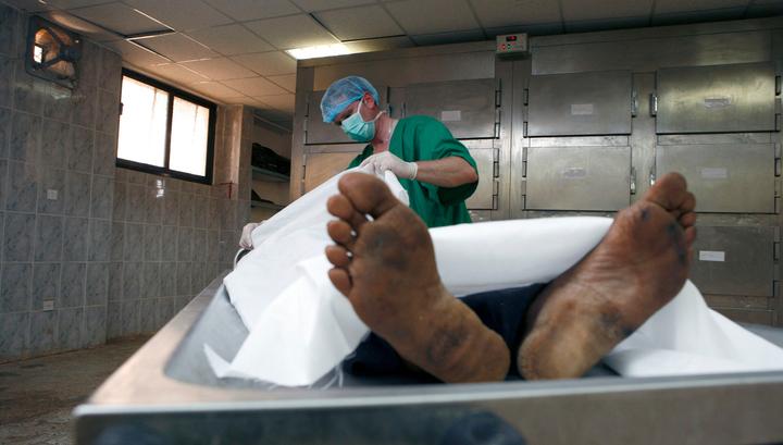 В США нашли мужское тело с пришитой женской головой