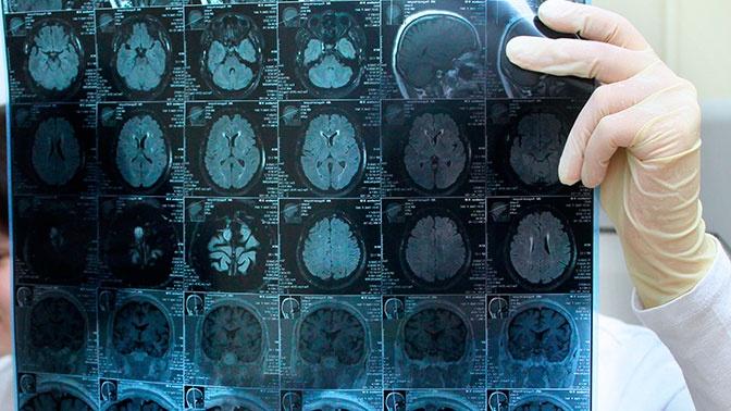 Врачи назвали неочевидные симптомы опухоли мозга