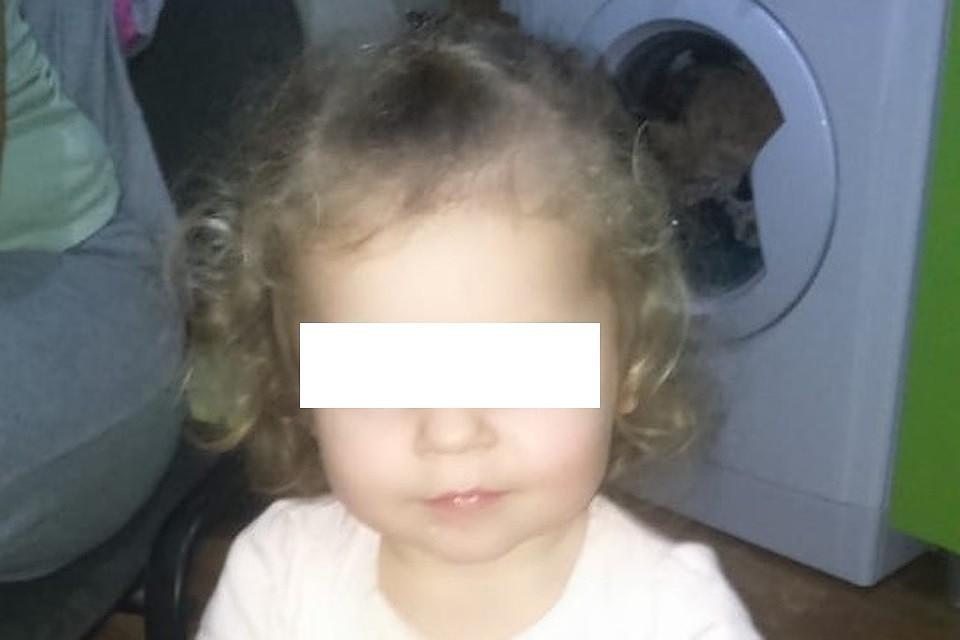 Оторвала лицо: в Евпатории собака напала на 4-летнюю девочку