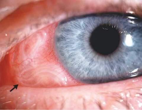 Врачи извлекли из глаза россиянина трехсантиметрового червя
