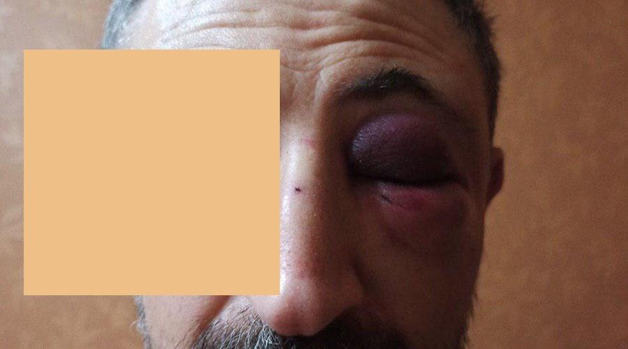 Приезжий таксист избил пассажира в Симферополе