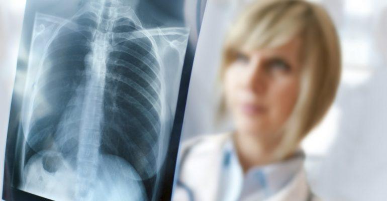 В Севастополе можно будет бесплатно пройти обследование легких