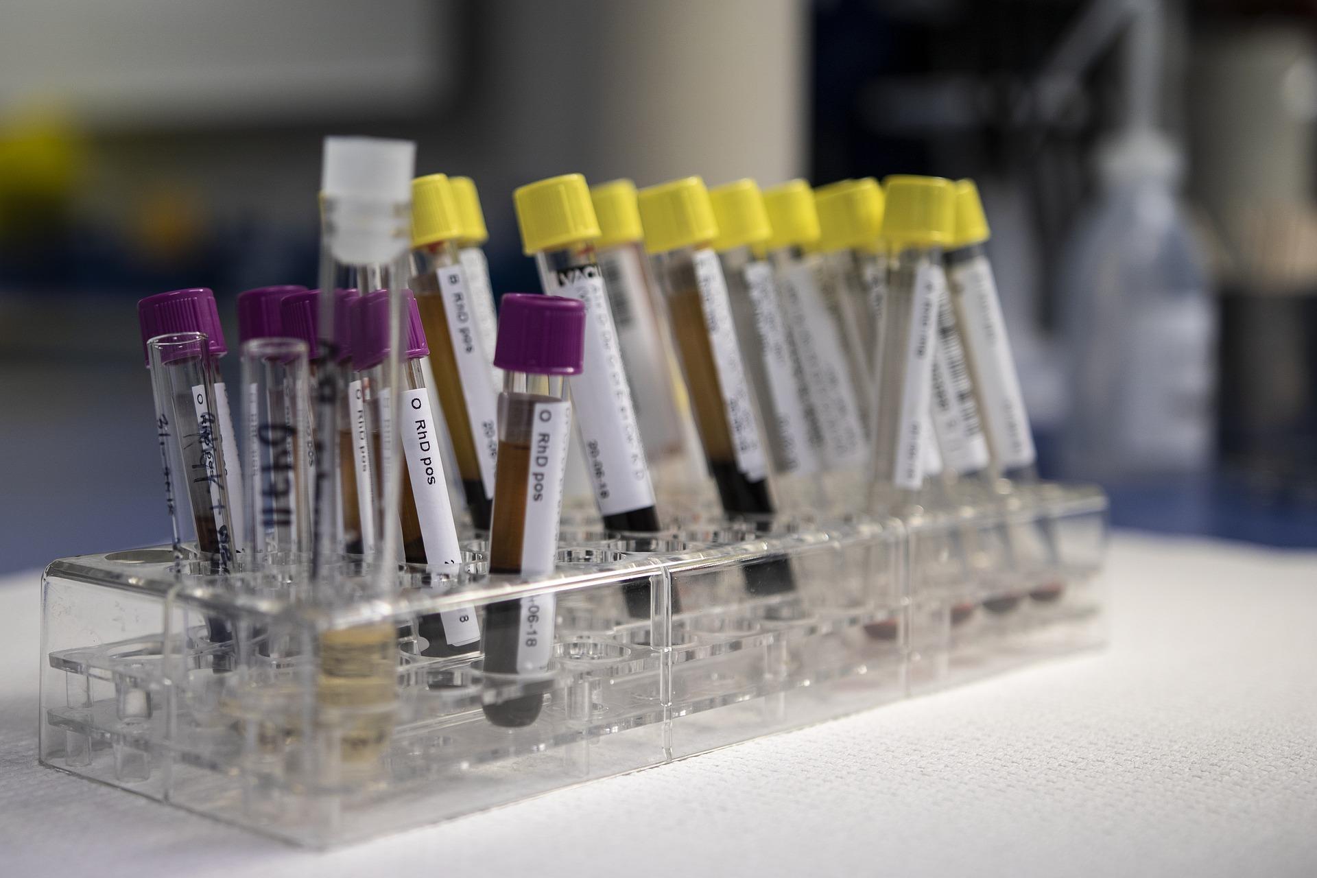 Российская сеть лабораторий начнет делать платные тесты на коронавирус