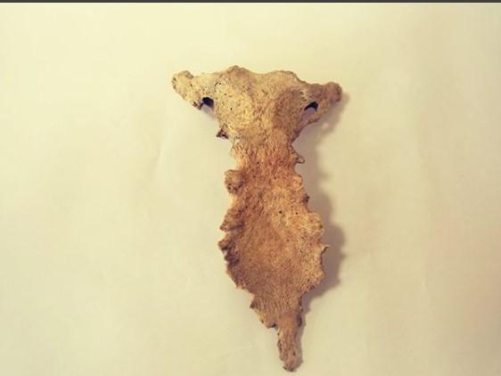 В Херсонесе обнаружили останки средневекового человека с редким генетическим заболеванием
