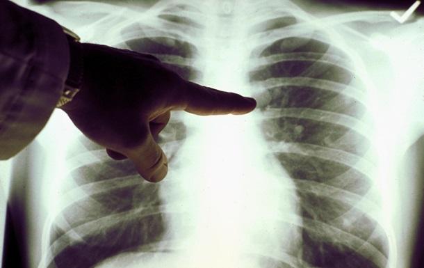 В Крыму число случаев пневмоний увеличилось на 70%